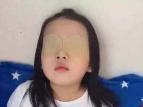眼贴护眼的原理是什么,到底有没有科学依据?