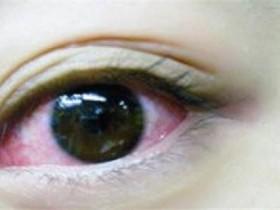 秋季这2大眼病高发,多补水,重卫生,做好预防!